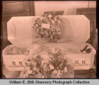 Deceased child in casket, Williston, N.D.